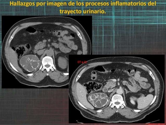 Hallazgos por imagen de los procesos inflamatorios del trayecto urinario.