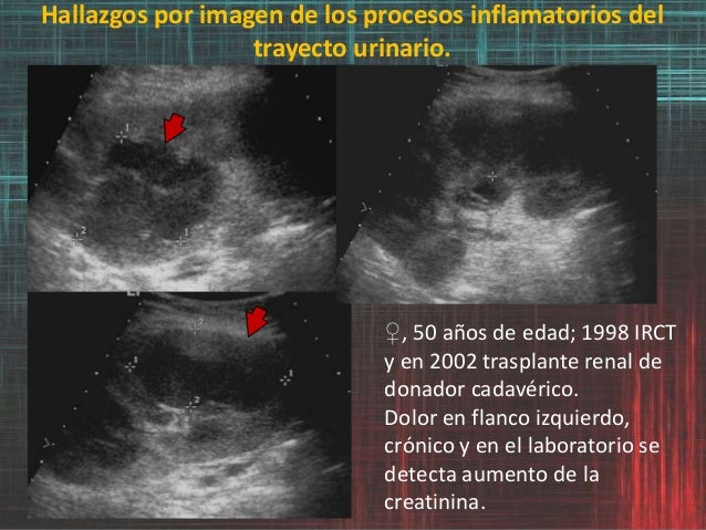 Hallazgos por imagen de los procesos inflamatorios del trayecto urinario. ♀, 50 años de edad; 1998 IRCT y en 2002 trasplan...