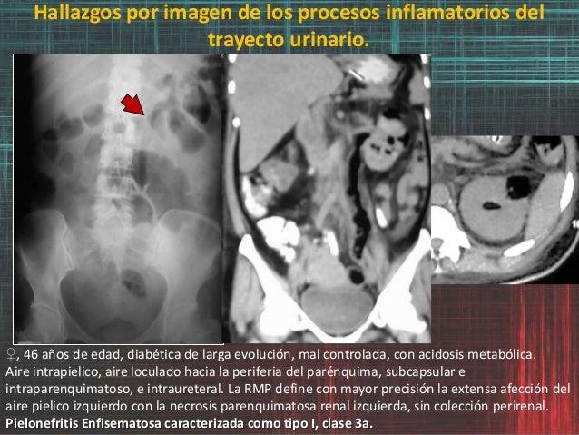 Hallazgos por imagen de los procesos inflamatorios del trayecto urinario. ♀, 46 años de edad, diabética de larga evolución...