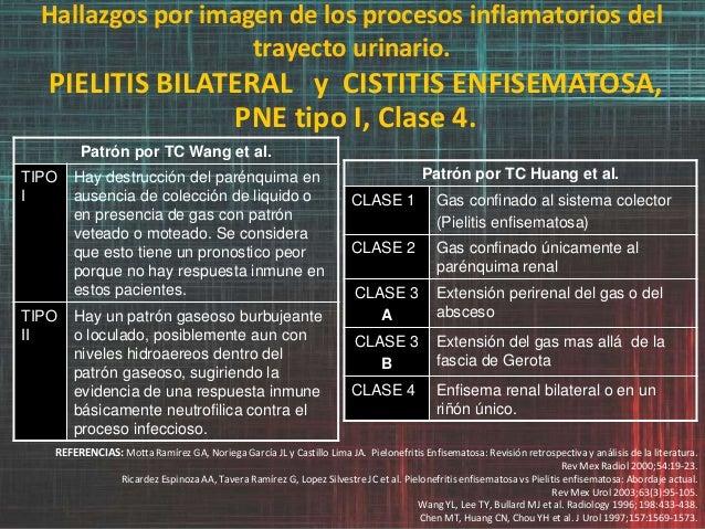 Hallazgos por imagen de los procesos inflamatorios del trayecto urinario. PIELITIS BILATERAL y CISTITIS ENFISEMATOSA, PNE ...