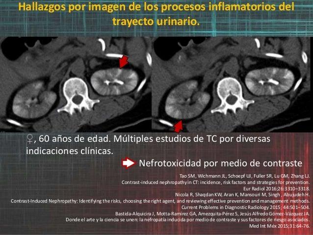 Hallazgos por imagen de los procesos inflamatorios del trayecto urinario. ♀, 60 años de edad. Múltiples estudios de TC por...