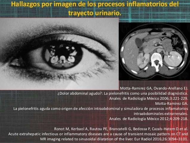 Hallazgos por imagen de los procesos inflamatorios del trayecto urinario. Motta-Ramirez GA, Ovando-Arellano EJ. ¿Dolor abd...