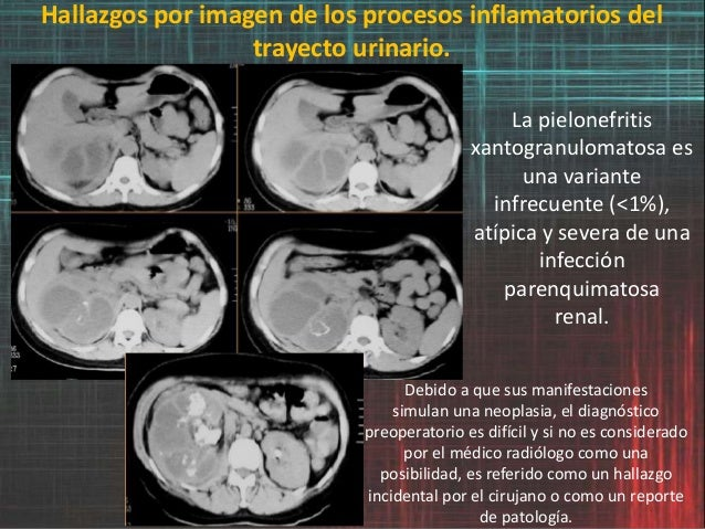 Hallazgos por imagen de los procesos inflamatorios del trayecto urinario. La pielonefritis xantogranulomatosa es una varia...