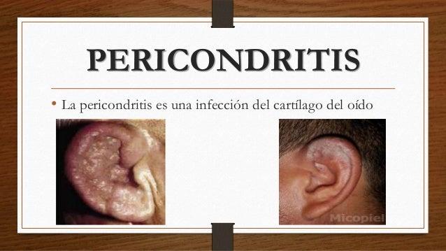Pericondritis