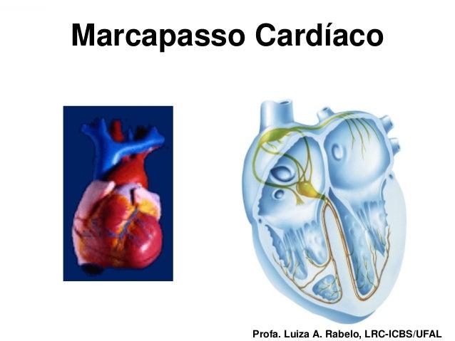 Marcapasso CardíacoProfa. Luiza A. Rabelo, LRC-ICBS/UFAL   Profa. Luiza A. Rabelo, LRC-ICBS/UFAL