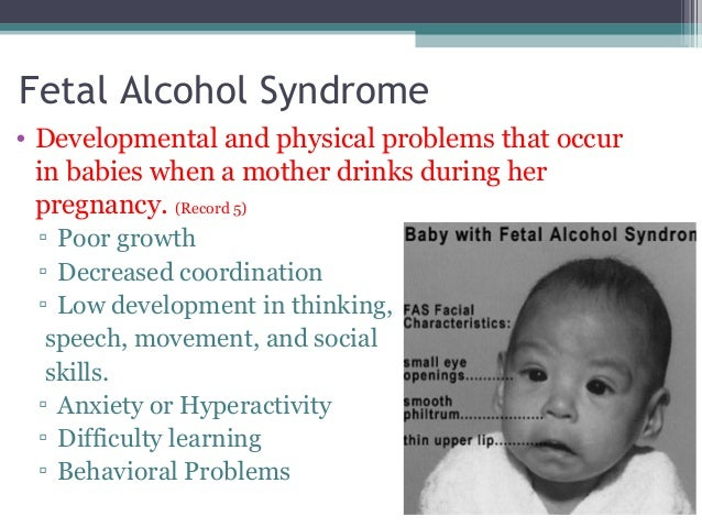 an analysis of the fetal alcohol syndrome in babies