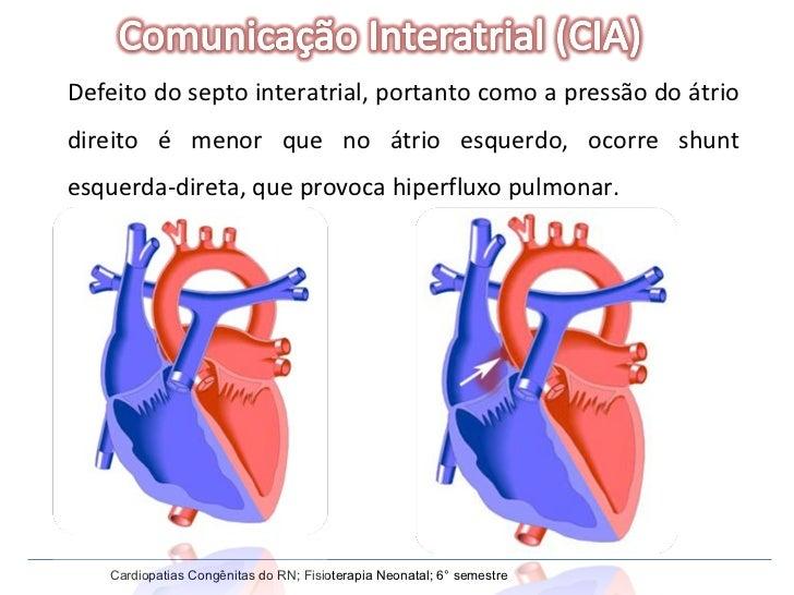 Defeito do septo interatrial, portanto como a pressão do átrio direito é menor que no átrio esquerdo, ocorre shunt esquerd...