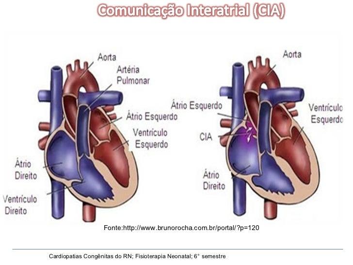 Cardiopatias Congênitas do RN; Fisioterapia Neonatal; 6° semestre Fonte:http://www.brunorocha.com.br/portal/?p=120