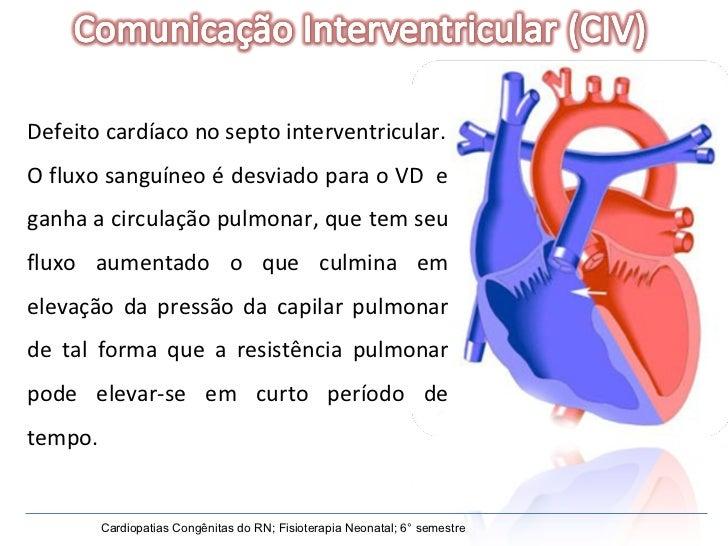 Defeito cardíaco no septo interventricular. O fluxo sanguíneo é desviado para o VD  e ganha a circulação pulmonar, que tem...