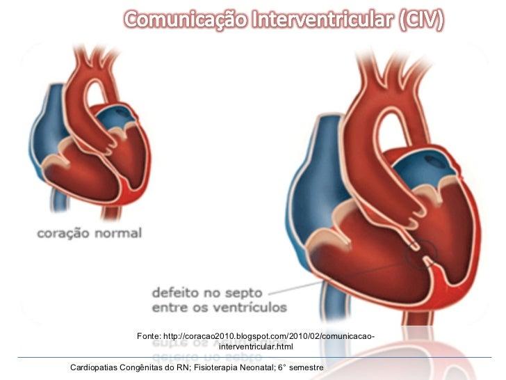 Cardiopatias Congênitas do RN; Fisioterapia Neonatal; 6° semestre Fonte: http://coracao2010.blogspot.com/2010/02/comunicac...