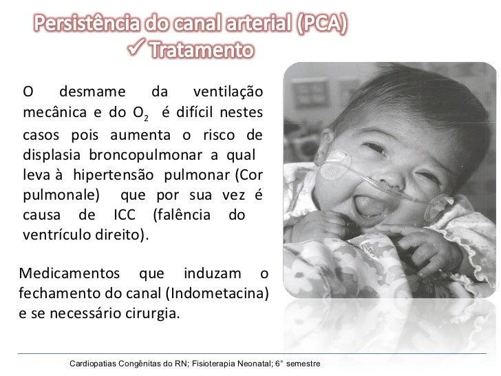 Medicamentos que induzam o fechamento do canal (Indometacina) e se necessário cirurgia. Cardiopatias Congênitas do RN; Fis...