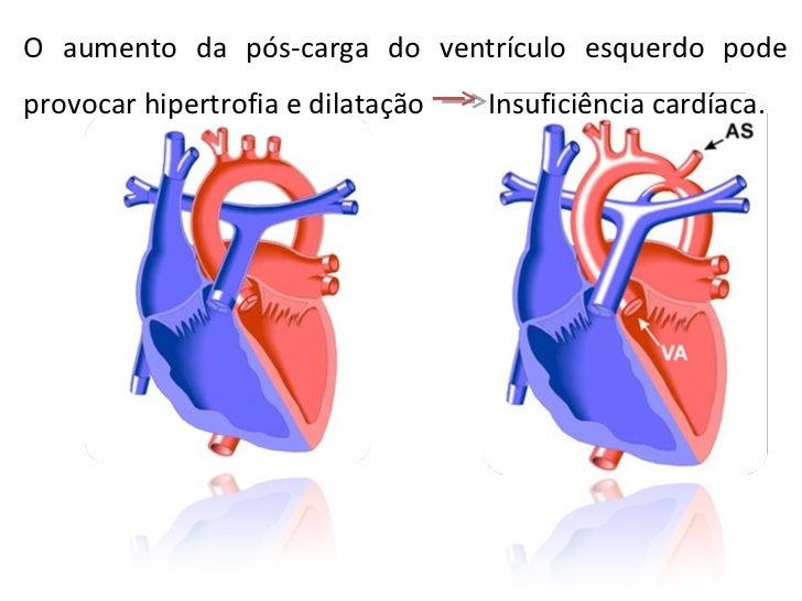 O aumento da pós-carga do ventrículo esquerdo pode provocar hipertrofia e dilatação  Insuficiência cardíaca.