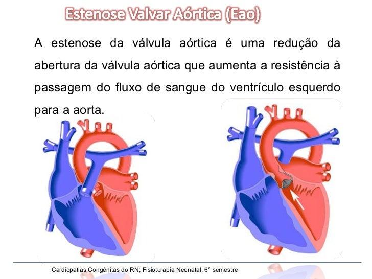 A estenose da válvula aórtica é uma redução da abertura da válvula aórtica que aumenta a resistência à passagem do fluxo d...