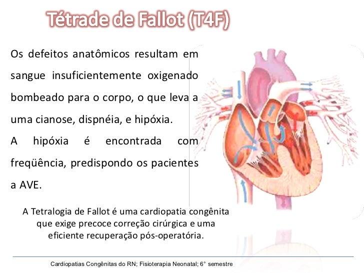 Os defeitos anatômicos resultam em sangue insuficientemente oxigenado bombeado para o corpo, o que leva a uma cianose, dis...