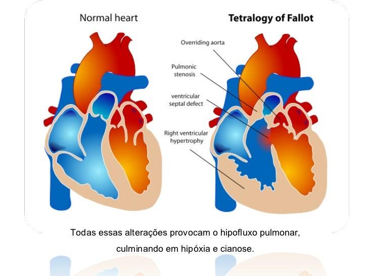 Todas essas alterações provocam o hipofluxo pulmonar, culminando em hipóxia e cianose.