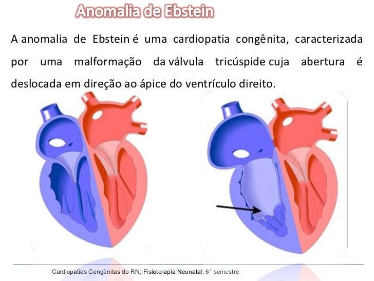 Cardiopatias Congênitas do RN; Fisioterapia Neonatal; 6° semestre Aanomalia de Ebsteiné uma cardiopatia congênita, carac...