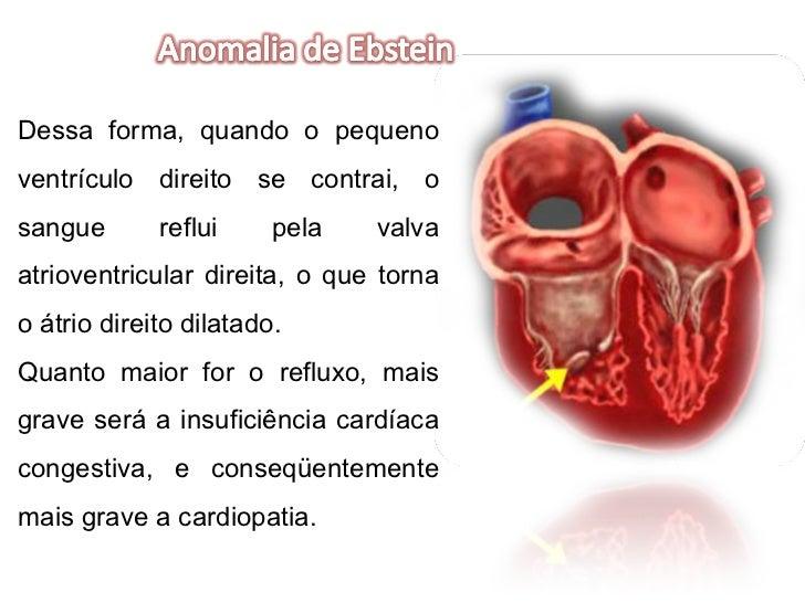 Dessa forma, quando o pequeno ventrículo direito se contrai, o sangue reflui pela valva atrioventricular direita, o que to...