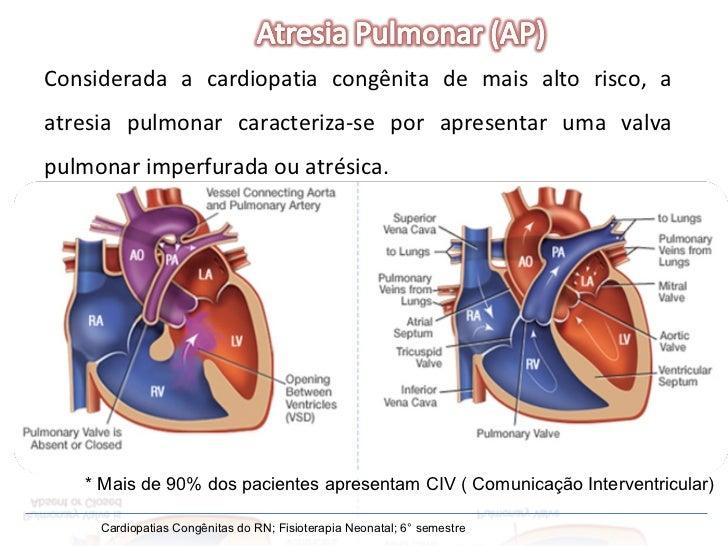 Cardiopatias Congênitas do RN; Fisioterapia Neonatal; 6° semestre Considerada a cardiopatia congênita de mais alto risco, ...