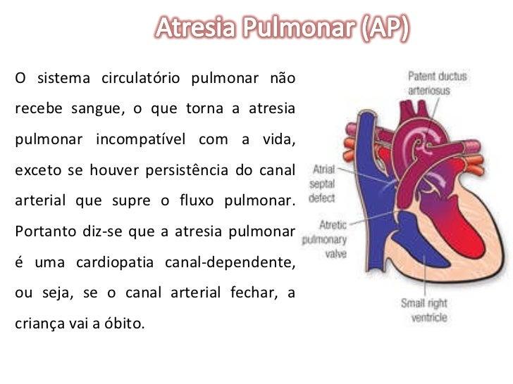 O sistema circulatório pulmonar não recebe sangue, o que torna a atresia pulmonar incompatível com a vida, exceto se houve...