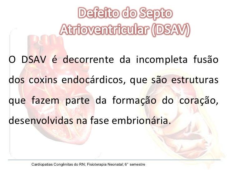 O DSAV é decorrente da incompleta fusão dos coxins endocárdicos, que são estruturas que fazem parte da formação do coração...