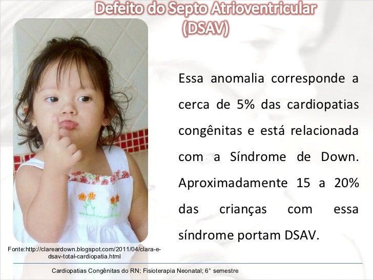 Essa anomalia corresponde a cerca de 5% das cardiopatias congênitas e está relacionada com a Síndrome de Down. Aproximadam...