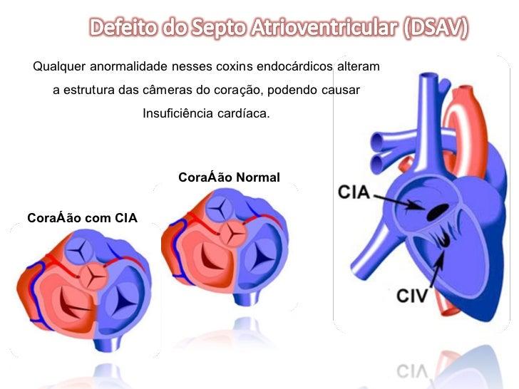Coração Normal Coração com CIA Qualquer anormalidade nesses coxins endocárdicos alteram a estrutura das câmeras do coração...