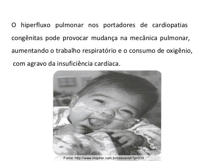 Fonte: http://www.inspirar.com.br/cascavel/?p=339 O hiperfluxo pulmonar nos portadores de cardiopatias  congênitas pode pr...