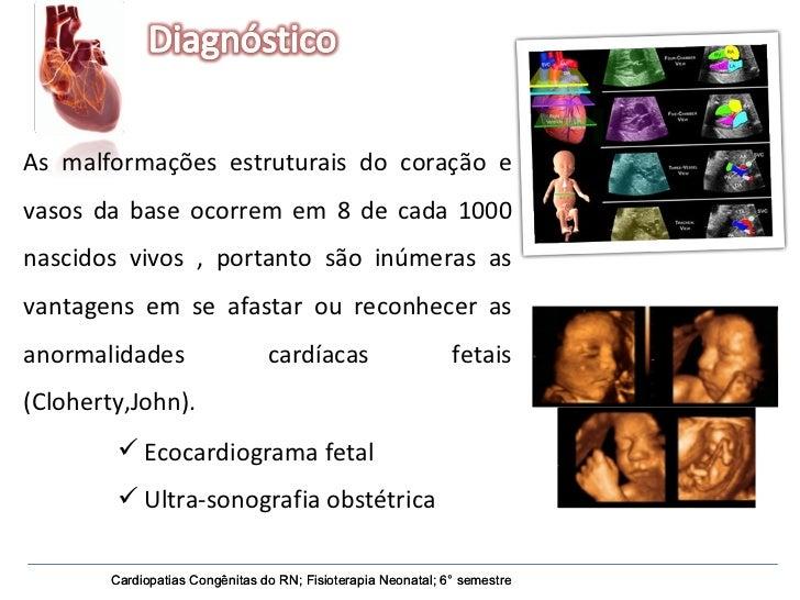 Cardiopatias Congênitas do RN; Fisioterapia Neonatal; 6° semestre Cardiopatias Congênitas do RN; Fisioterapia Neonatal; 6°...