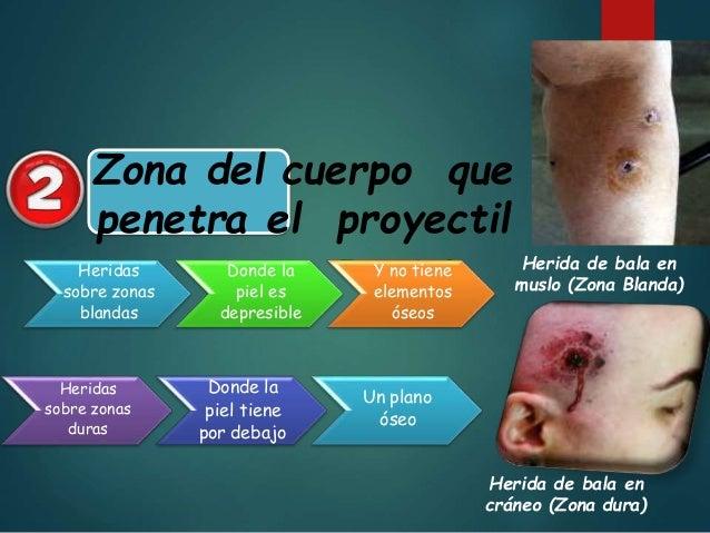 Tatuaje: Formado por zona concéntrica de los granos de pólvora no quemados que se incrustan en la piel Quemadura: Es el ch...