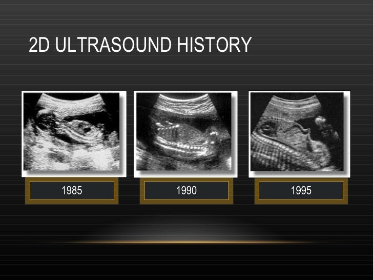 2 d and 3d ultrasound