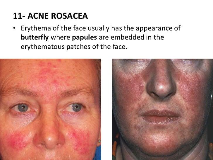 Facial sweat glands