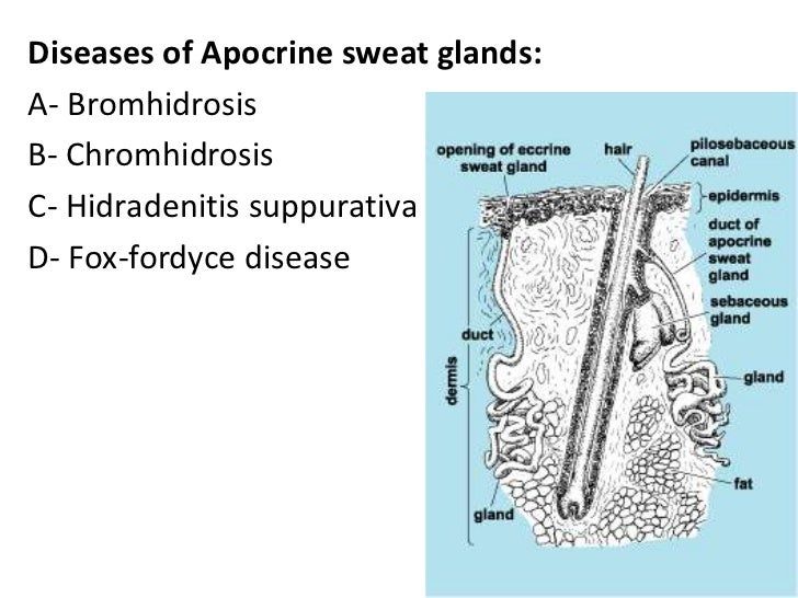 Dermatology Disorders Of Sebaceous And Sweat Glandsdrfaraydwn