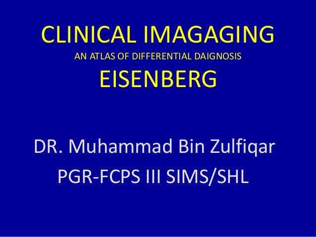 2 generalized osteoporosis Slide 2