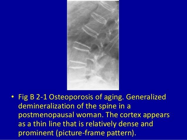 2 generalized osteoporosis Slide 3