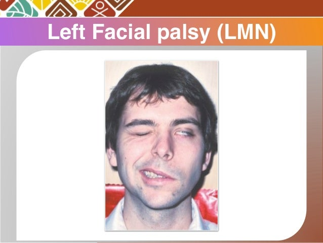 Left facial paralysis