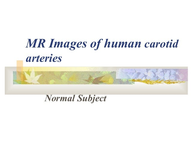 MR Images of human carotid arteries Normal Subject