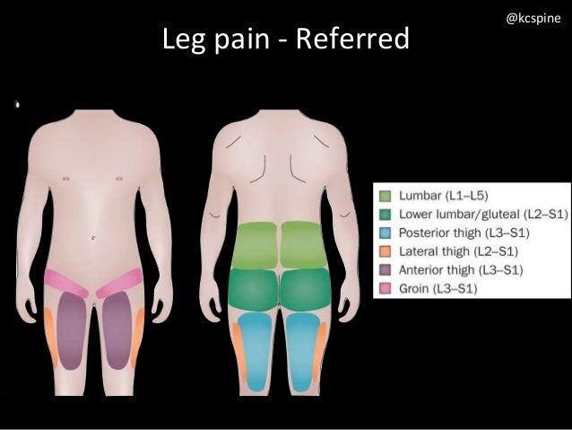 spondylolisthesis leg pain
