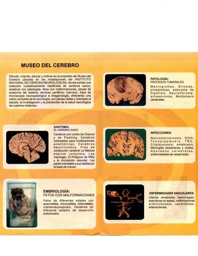 2museo del cerebro