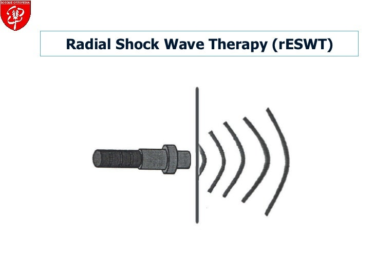 Radial Shock Wave Therapy (rESWT)