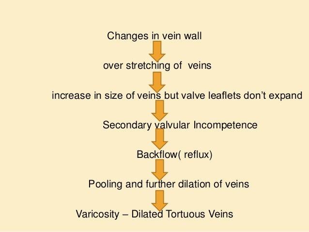 etiology of varicose veins