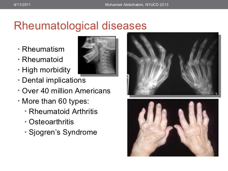 Rheumatological diseases <ul><li>Rheumatism </li></ul><ul><li>Rheumatoid </li></ul><ul><li>High morbidity </li></ul><ul><l...