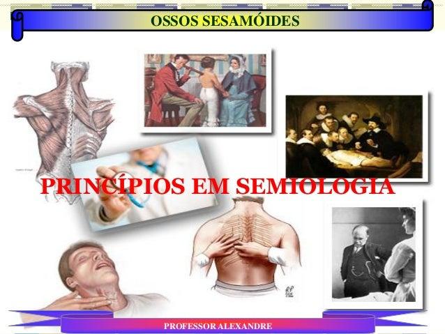 PRINCÍPIOS EM SEMIOLOGIA OSSOS SESAMÓIDES PROFESSOR ALEXANDRE