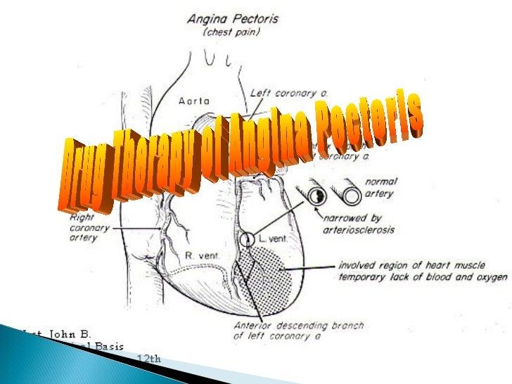 Drug Therapy of Angina Pectoris