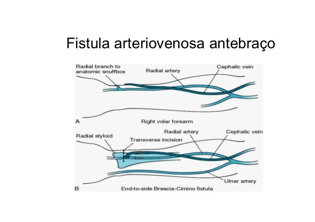 2 sistema renal dialise e hemodialise acesso vascular prtese vascular 52 ccuart Choice Image