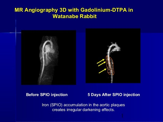 1 MR Angiography 3D with Gadolinium-DTPA in Watanabe Rabbit Before SPIO injection 5 Days After SPIO injection Iron (SPIO) ...