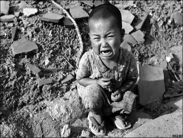 Fotos das vitimas da bomba atomica 75