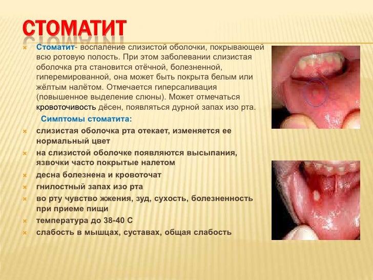 Виды стоматита у детей фото