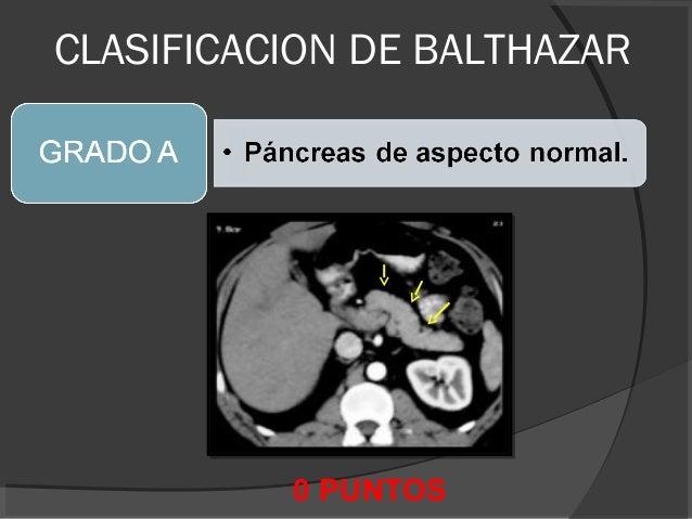 Clase de pancreas - TC