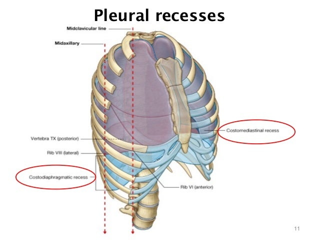 the clinical description of pleurisy The pleural cavity is the thin fluid-filled space between the two pulmonary pleurae (known as visceral and parietal) of each lung clinical significance.