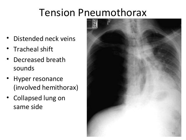 thorax pleura